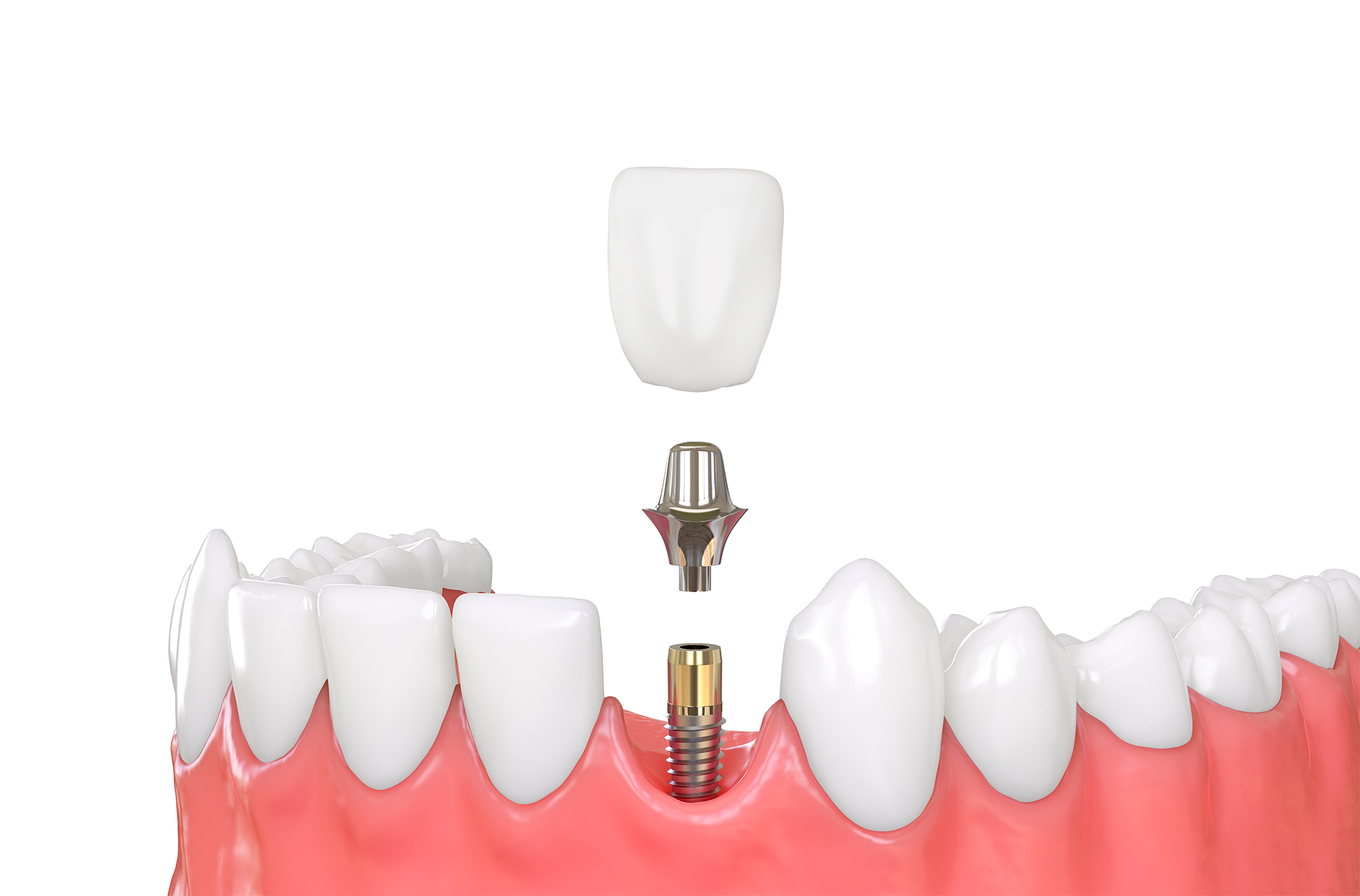 Diagram of dental Implants by dentist in Allentown, PA.