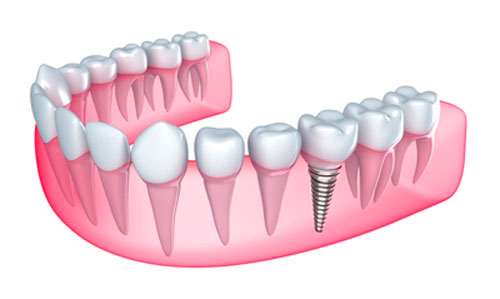 Making Your Mouth Healthier to Improve Your Odds of Getting Dental Implants